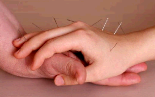 Acupuncture for Health - Kate Pietrowski second image