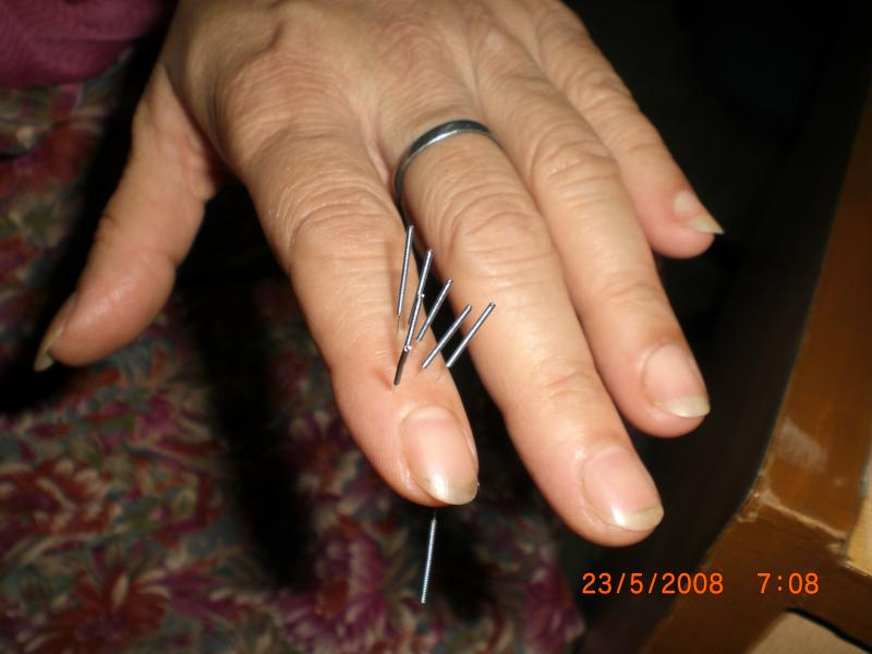 SuJok Acupuncture first image